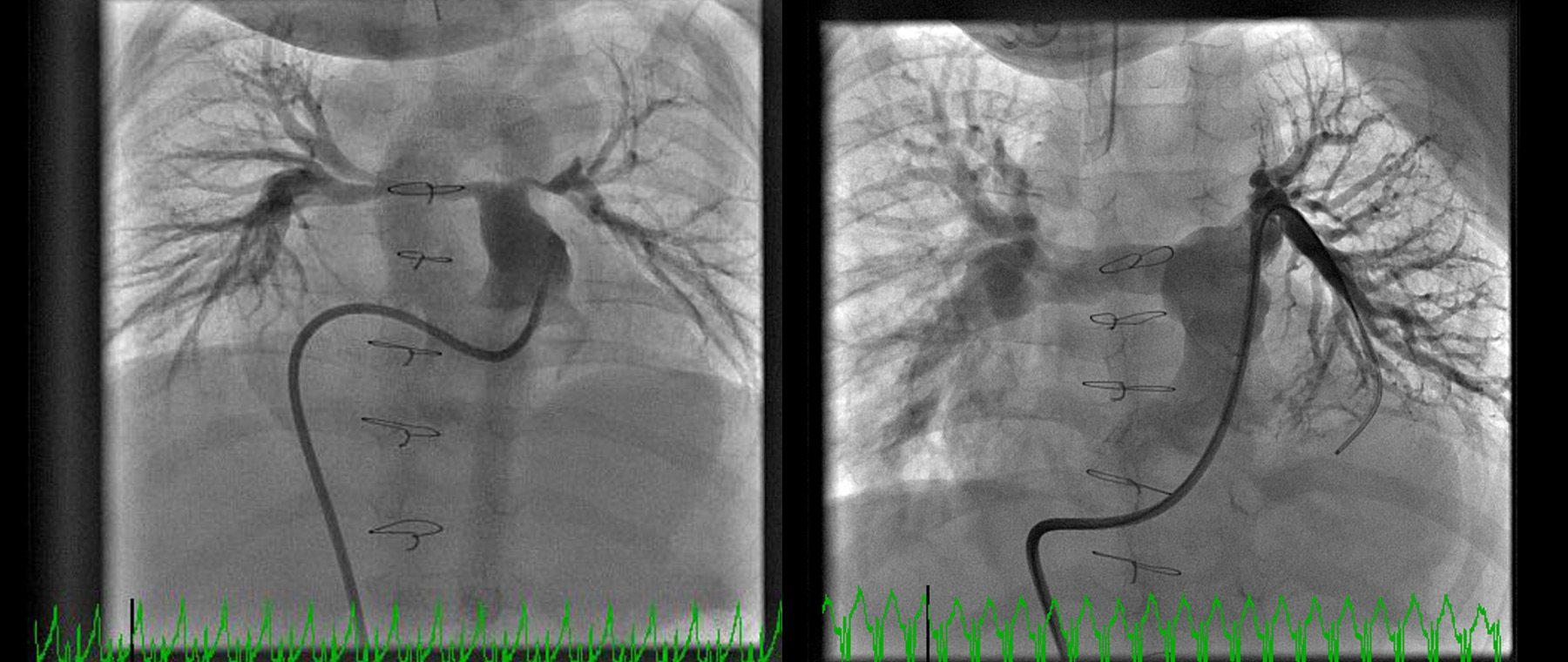 Nolan's before and after x-rays: his arteries remained extremely small (left) and the hole in his heart could not be closed until they could be enlarged. He was brought to the catheterization laboratory for five procedures over several years to enlarge and stent his pulmonary arteries, significantly improving their size (right). Photos: courtesy of CHEO